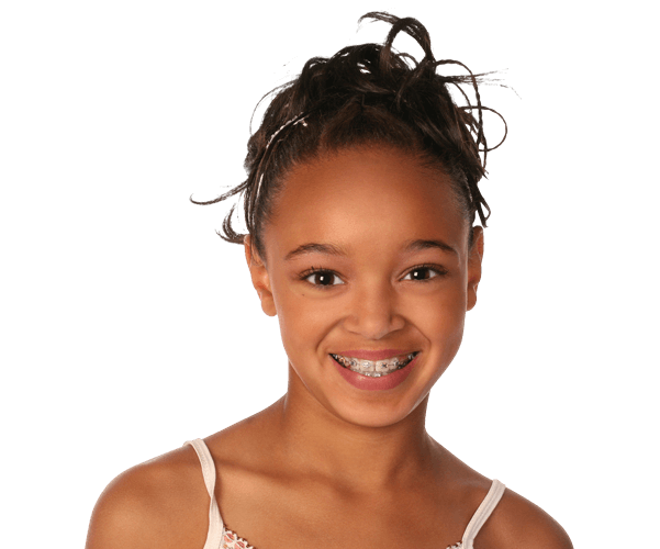 Braces at Orthodontic Excellence