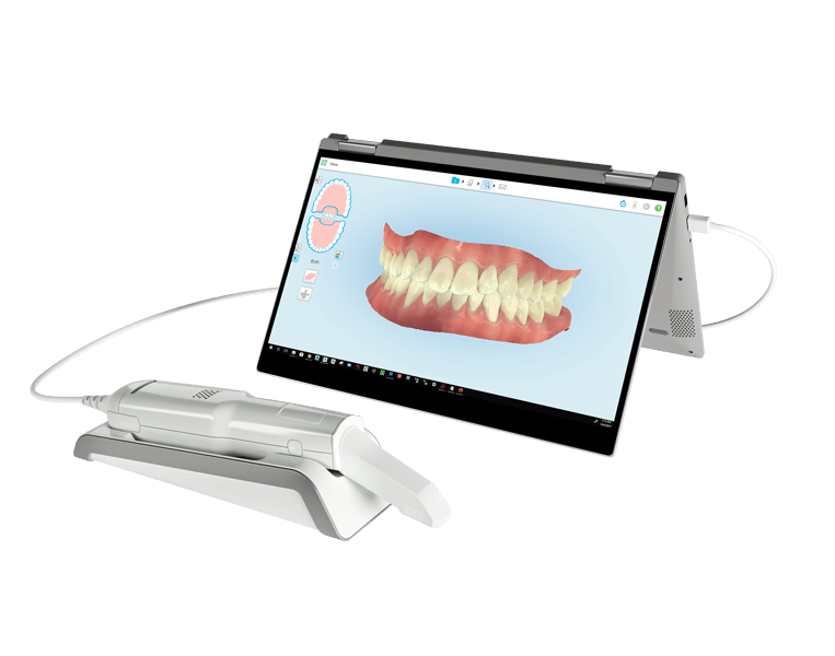 Orthodontic Scanners
